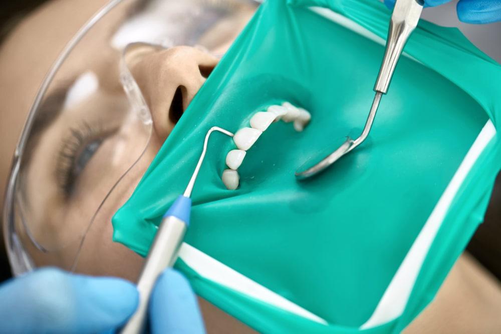 devitalizzare un dente con la diga di gomma